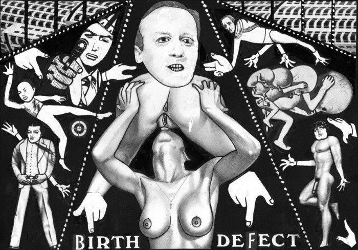 Birth Defect
